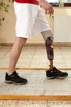 Prosthetic Leg - Charitable Donations
