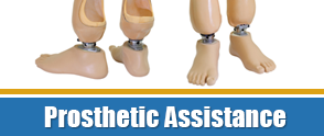 Prosthetic Assistance